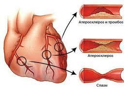 сердце и артерии